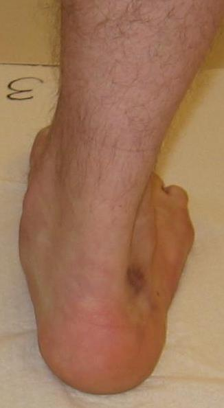 Abb. 1: Fuß von hinten man sieht die kleinen Zehen vorn neben dem Aussenknöchel ( too many toes sign )