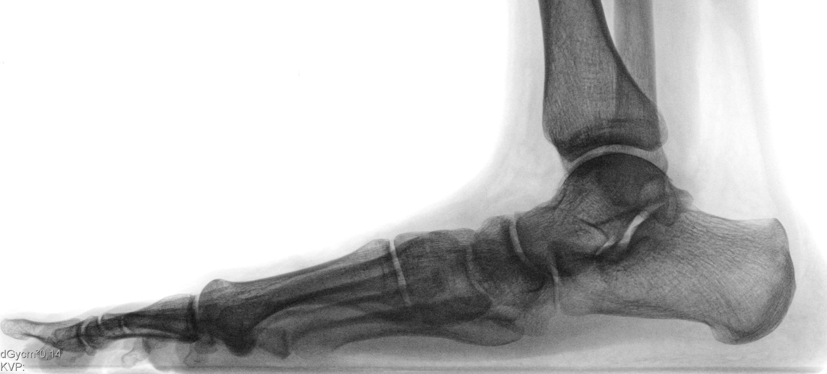 Abb. 6: Röntgen von der Seite : das Fersenbein steht fast horizontal, das Längsgewölbe ist abgeflacht, das Sprungbein ist im Verhältnis zum Fersenbein nach unten verschoben, es findet sich ein Knick zwischen Kahnbein und Keilbein