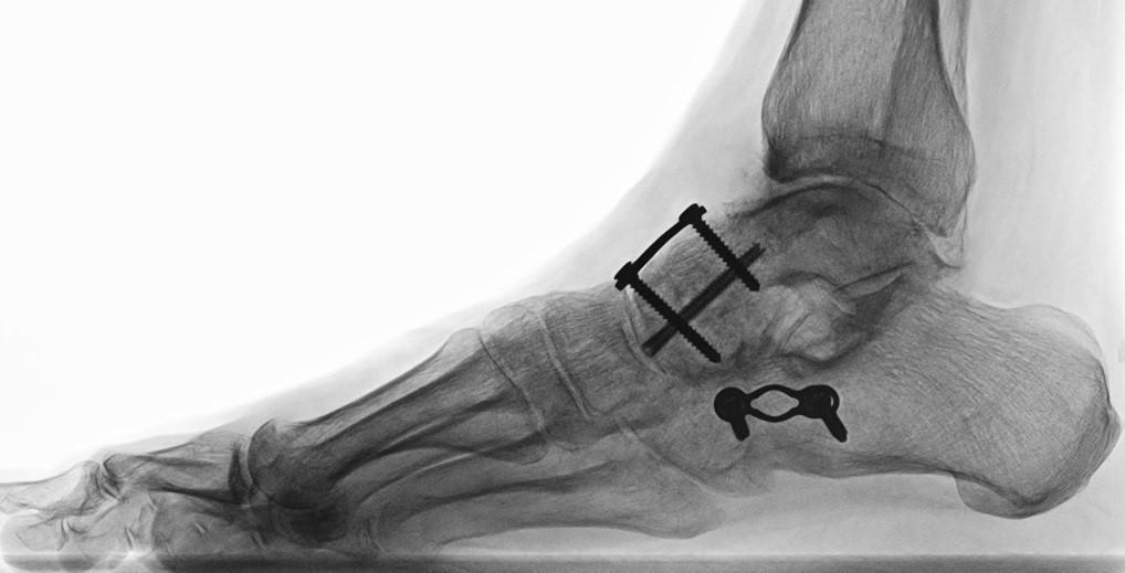 Arthrotische Veränderungen im Fersenbein-Würfelbein Gelenk (Calcaneo-cuboidal (CCG ) )oder im Kahnbein-Sprungbeingelenk ( Talo-Navicular- Gelenk (TNG ) ) werden durch eine Verschraubung behandelt