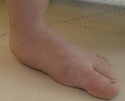 Fuß eines jugendlichen Patienten mit Knicksenkfuß
