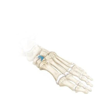 Durchtrennung des Keilbeins und Biegen des Knochens nach unten. Fixierung mit einer aufspreizenden Platte