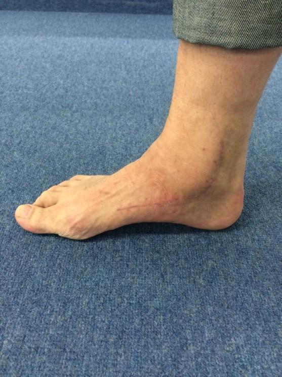 Innenseite des Fußes nach medialer Rekonstruktion der Bänder , der Tibialis posterior Sehne und Versetzung des Flexor digitorum longus ( langer Zehenbeuger )