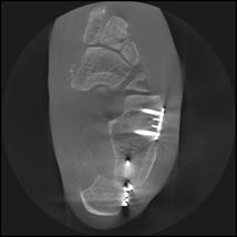 Verschiebung des Fersenbeins nach innen und Verlängernde Knochendurchtrennung des Fersenbeins um eine Ausrichtung des Fußes unter die Belastungsachse herzustellen