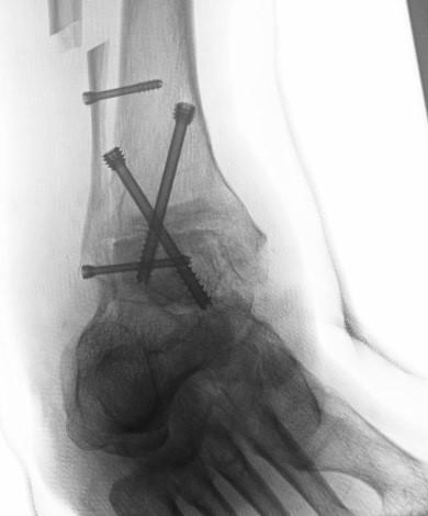 Verschraubung des oberen Sprunggelenkes, OSG-Arthrodese
