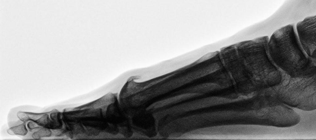 Abb. Hallux rigidus - elevierter 1. Strahl mit dorsalem Osteophyten