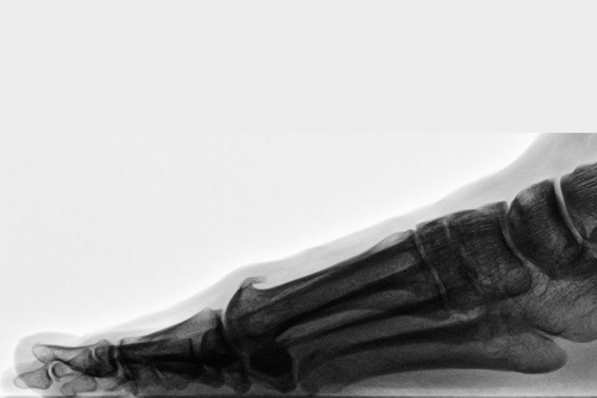 Hallux rigidus - elevierter 1. Strahl mit dorsalem Osteophyten